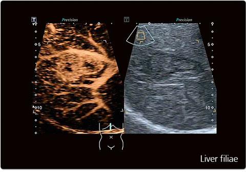 Liver filiae